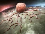 cancer-cdc-1
