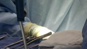 Cómo una donación de órganos puede salvar 8 vidas