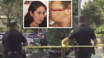 Mujer atacada con motosierra cuenta su odisea