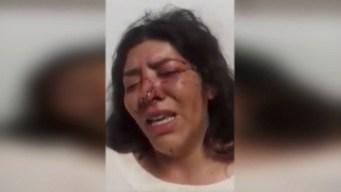 Mujer vive calvario por denunciar agresión de político