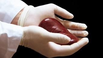 Mujer con VIH dona riñón a otro paciente del virus