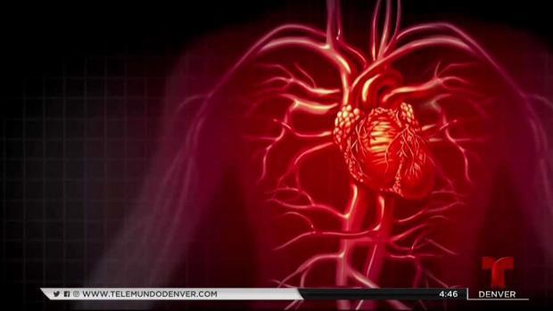Lo que debes saber para prevenir ataque al corazón
