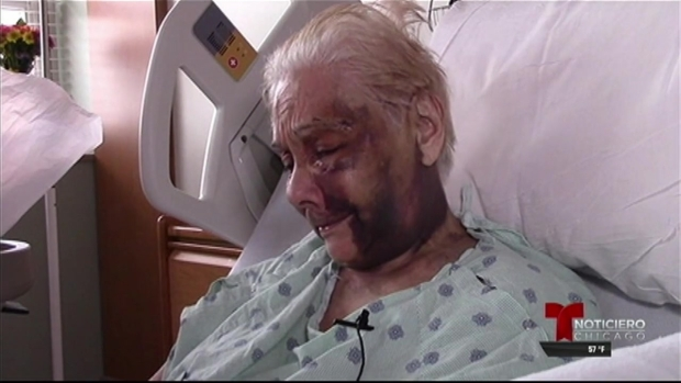 Hombre golpeó sin razón alguna a anciano de 90 años