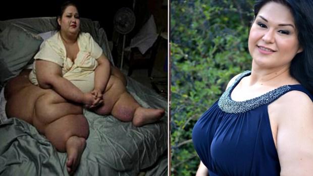 Fotos: Mayra Rosales, su transformación es un ejemplo para todos