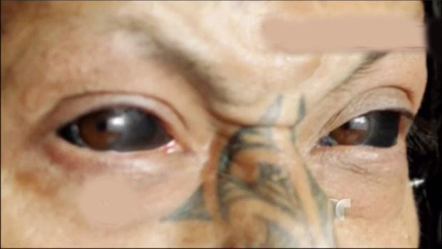 Video: ¡Insólito! Hombre se tatúa los ojos