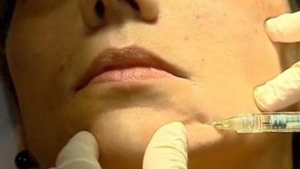 Video: Nuevo relleno para rejuvenecer el rostro