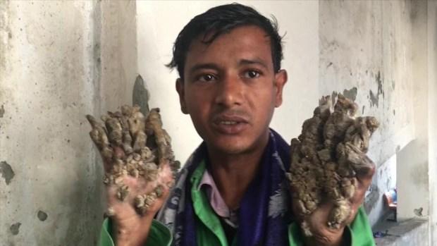 [TLMD - LV] El hombre árbol de Bangladesh vuelve al hospital sin esperanzas de curación