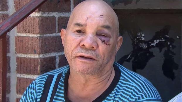 [TLMD - NY] NYPD: ataque a dominicano captado en video
