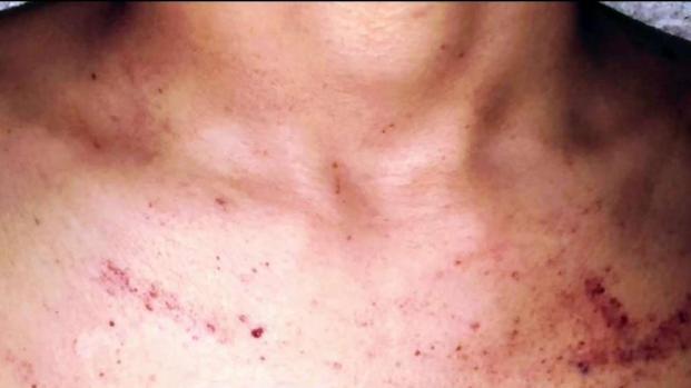 [TLMD - Dallas] Rara enfermedad ataca a adolescente en el Metroplex