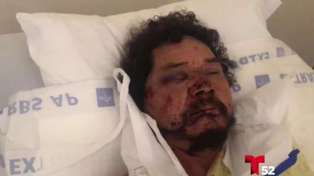 [TLMD - LA] Vendendor ambulante brutalmente golpeado en Los Ángeles