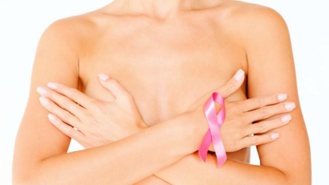 Octubre rosa: el cáncer de mama es curable