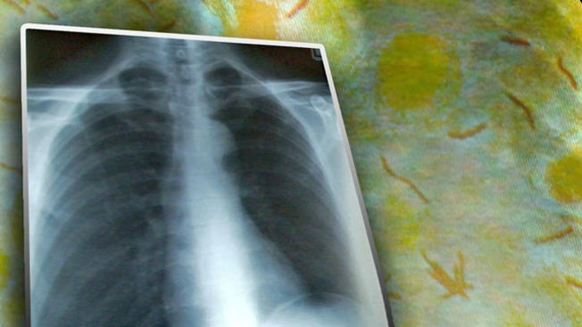 Ayuda para encontrar a tuberculoso