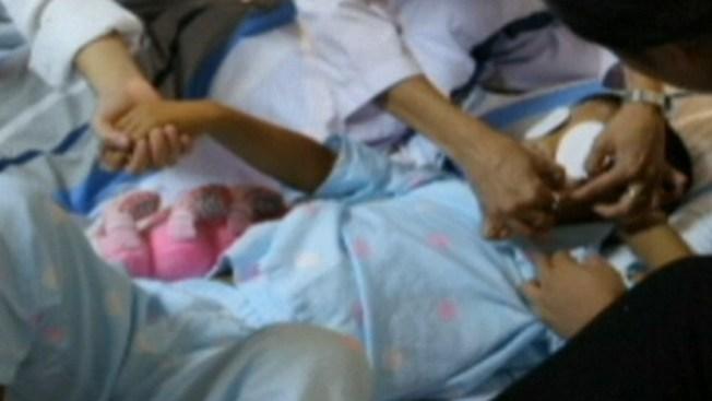 Exitoso implante de ojos a niñito