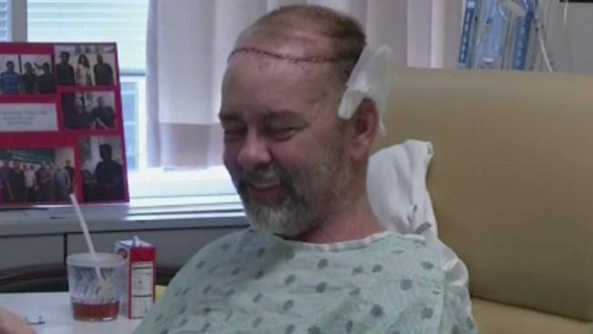 Realizan inédito transplante de cráneo